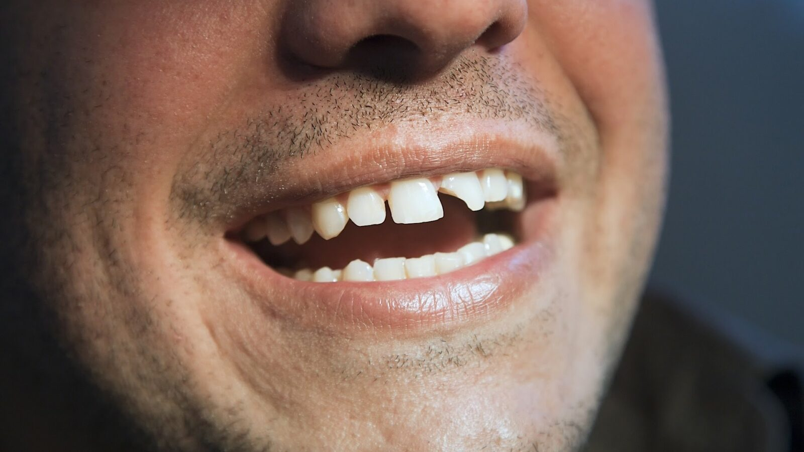 white crack on tooth