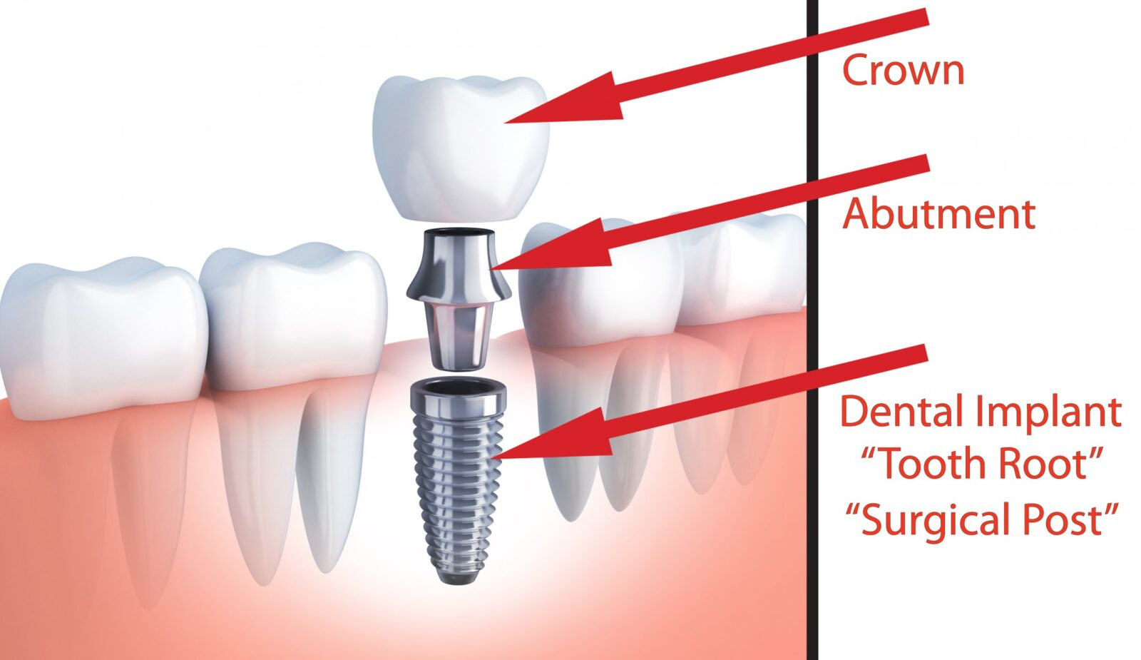 Dental Implant Surgery Art Of Smiles